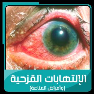 الإلتهابات القزحية أعراضها وعلاجها